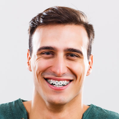 Adult orthodontics and braces for adults