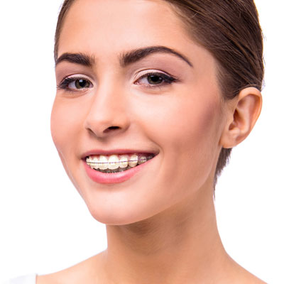 Clarity ceramic braces are available at Quest Johnson Orthodontics