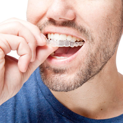 Invisalign clear braces for teens and adults in Indiana