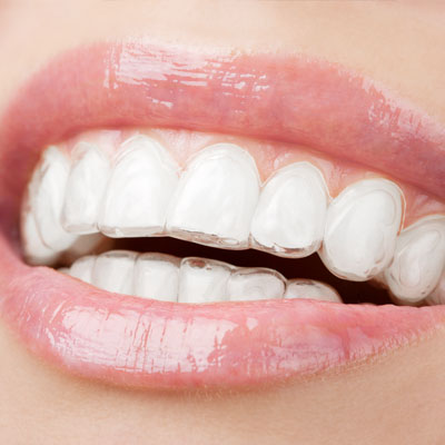 Why choose Invisalign clear braces for teens and adults